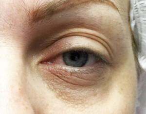 yeux2-avant