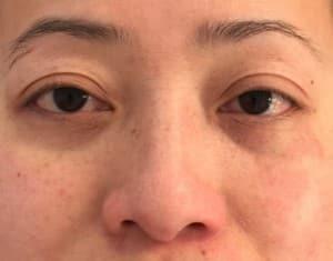 yeux1-avant