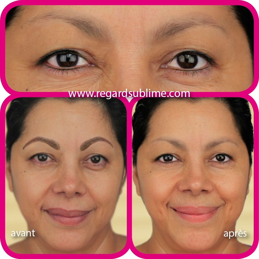 Dépigmentation maquillage permanent des sourcils