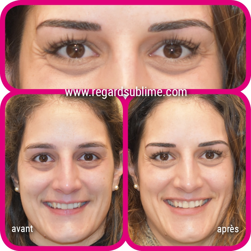 Maquillage permanent des sourcils - technique poil à poil